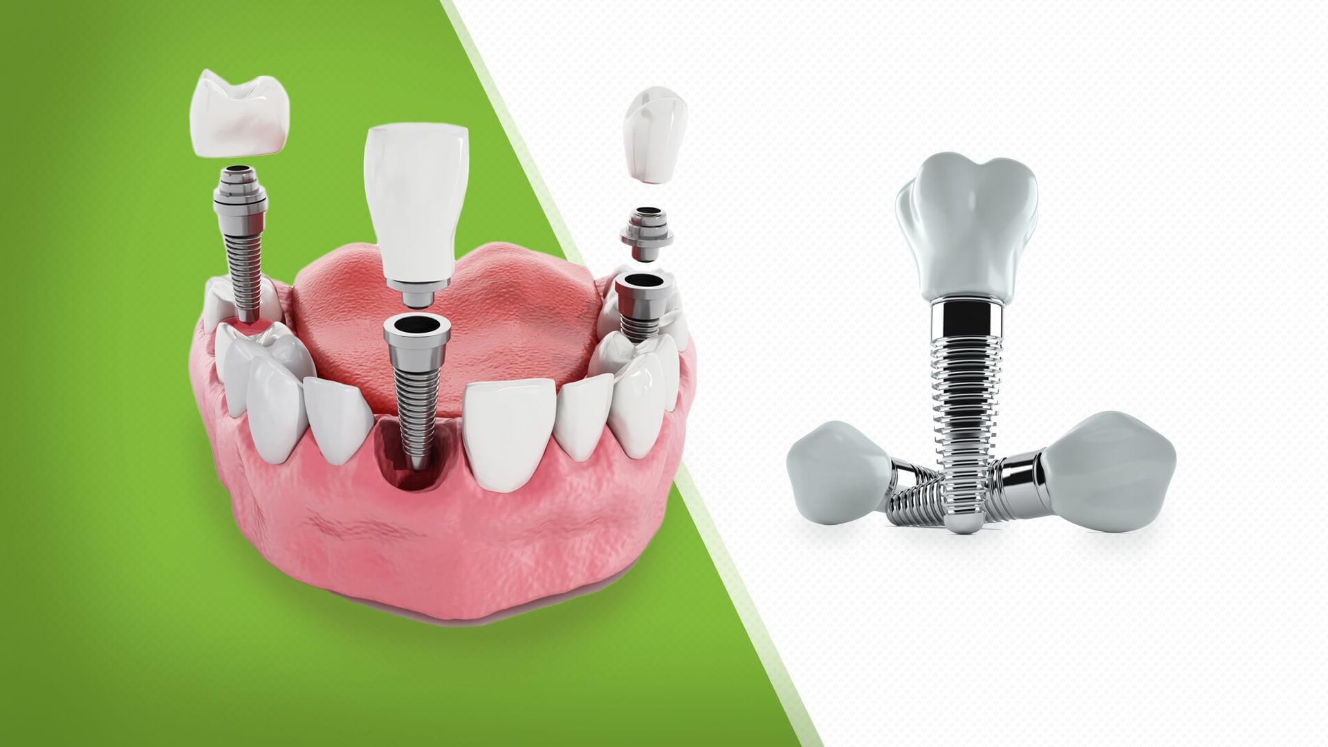Klinik Cadde Ümraniye Diş Tedavi Hizmetleri Ümraniye Diş İmplant